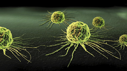 cancer-cell1