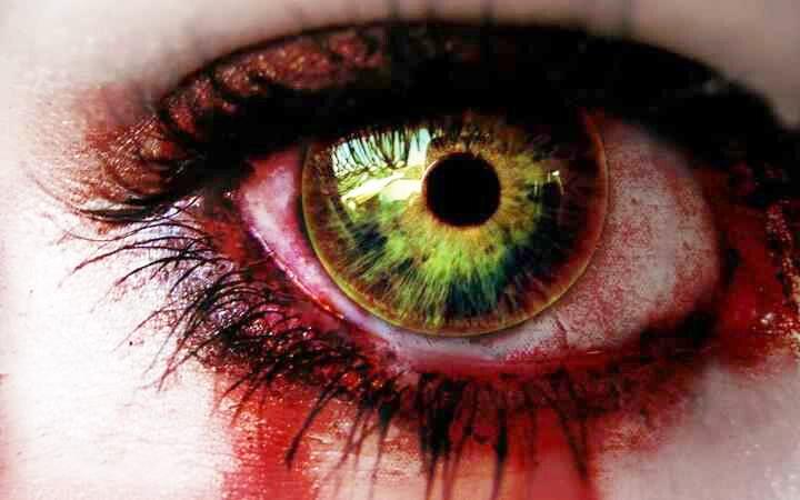 bldy eye